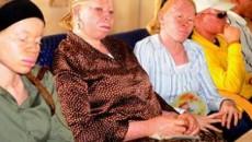 The president of AFN estimated that Nigeria has about 6 million albinos.